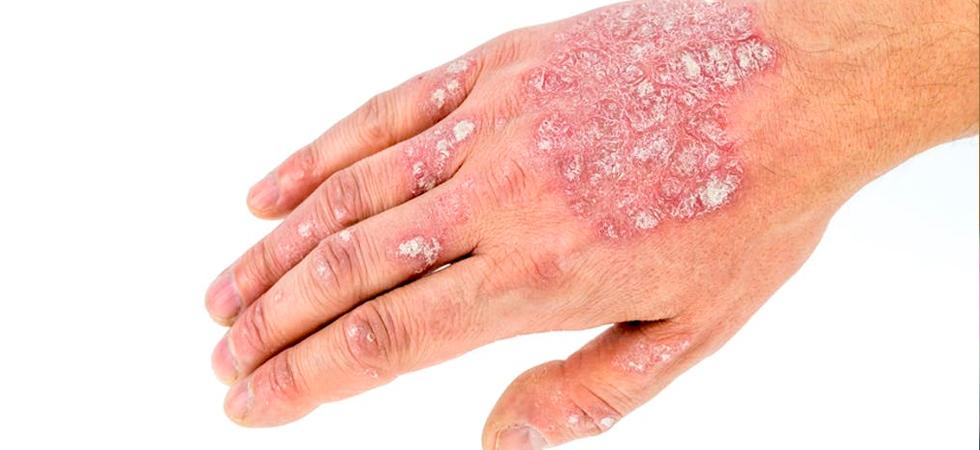 Заболевания кожи в картинках