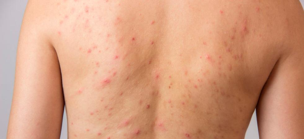 Лечение угревой сыпи на спине